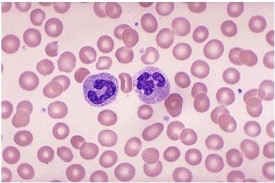 """Hình ảnh của các tế bào hồng cầu khỏe mạnh và """"hạnh phúc"""" (các tế bào màu xanh thể hiện các tế bào bạch cầu)"""